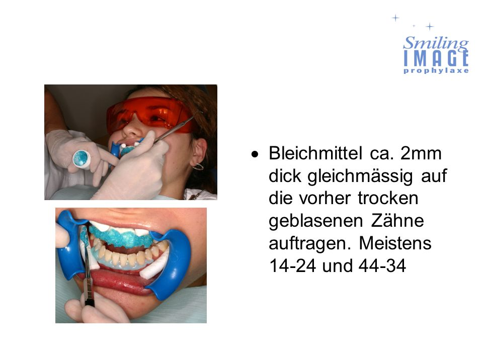 Bleichmittel ca. 2mm dick gleichmässig auf die vorher trocken geblasenen Zähne auftragen.