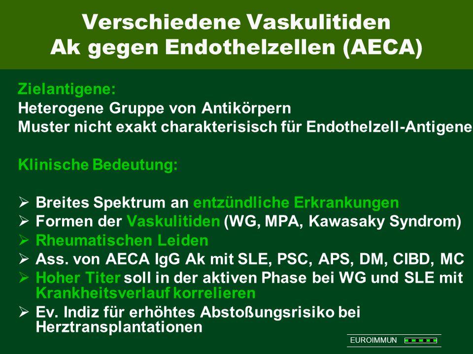 Verschiedene Vaskulitiden Ak gegen Endothelzellen (AECA)