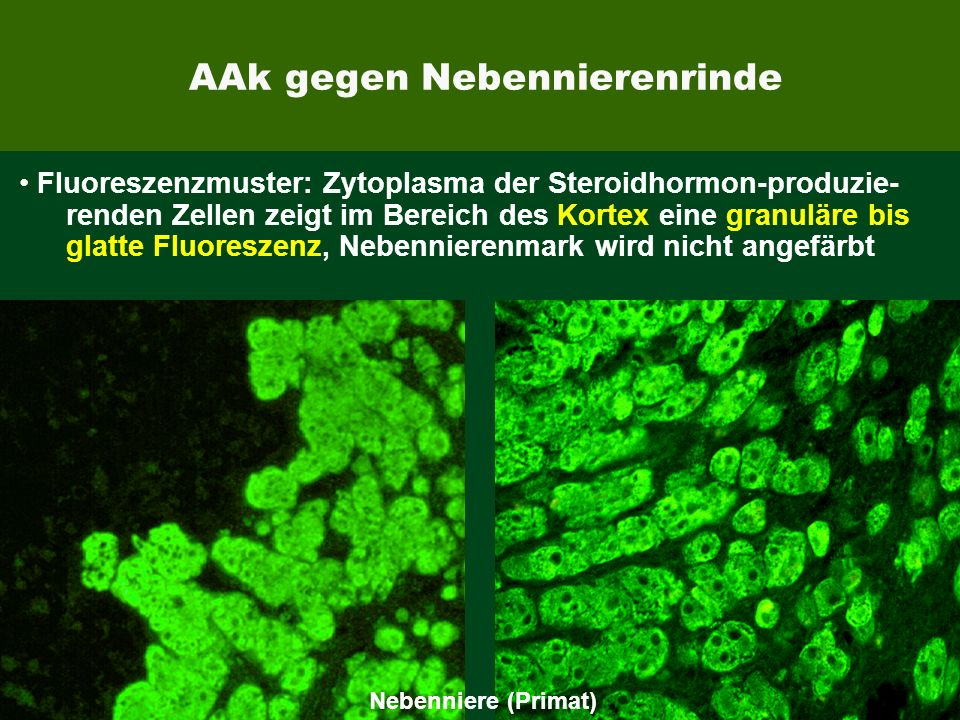AAk gegen Nebennierenrinde