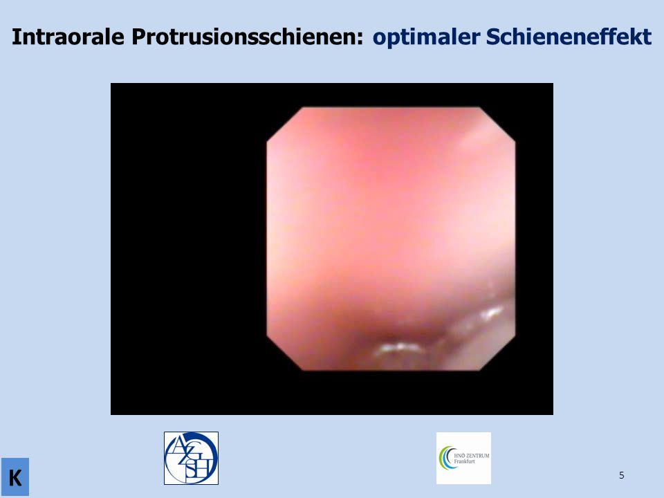 Intraorale Protrusionsschienen: optimaler Schieneneffekt