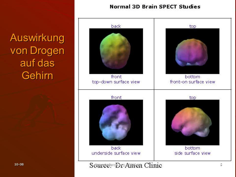 Auswirkung von Drogen auf das Gehirn