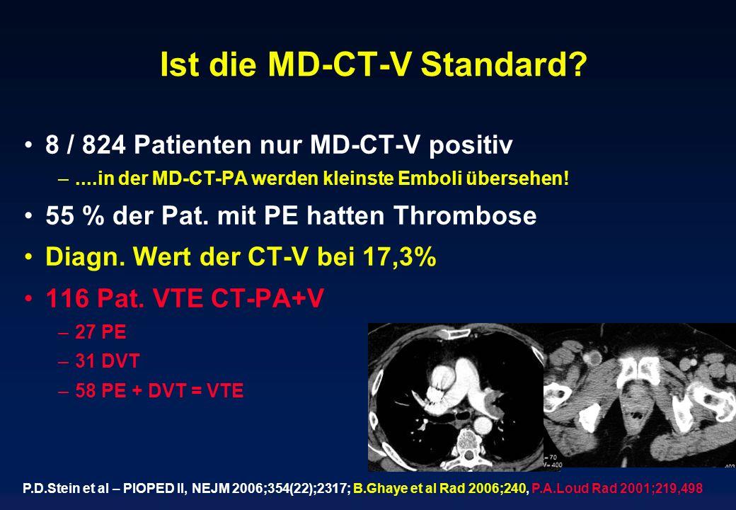 Ist die MD-CT-V Standard