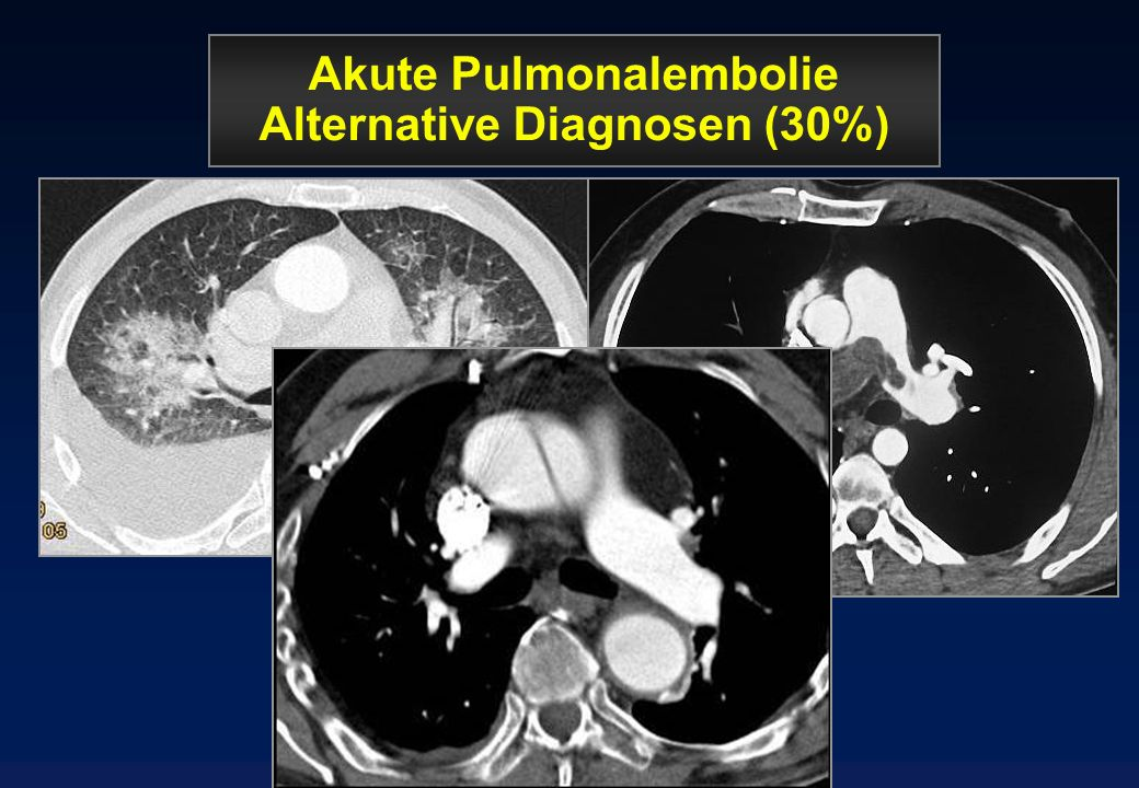 Akute Pulmonalembolie Alternative Diagnosen (30%)