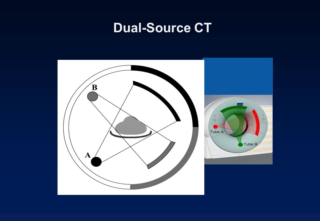 Dual-Source CT
