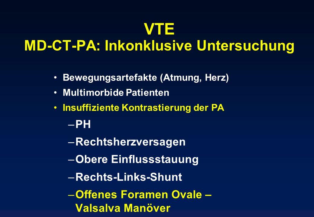 VTE MD-CT-PA: Inkonklusive Untersuchung