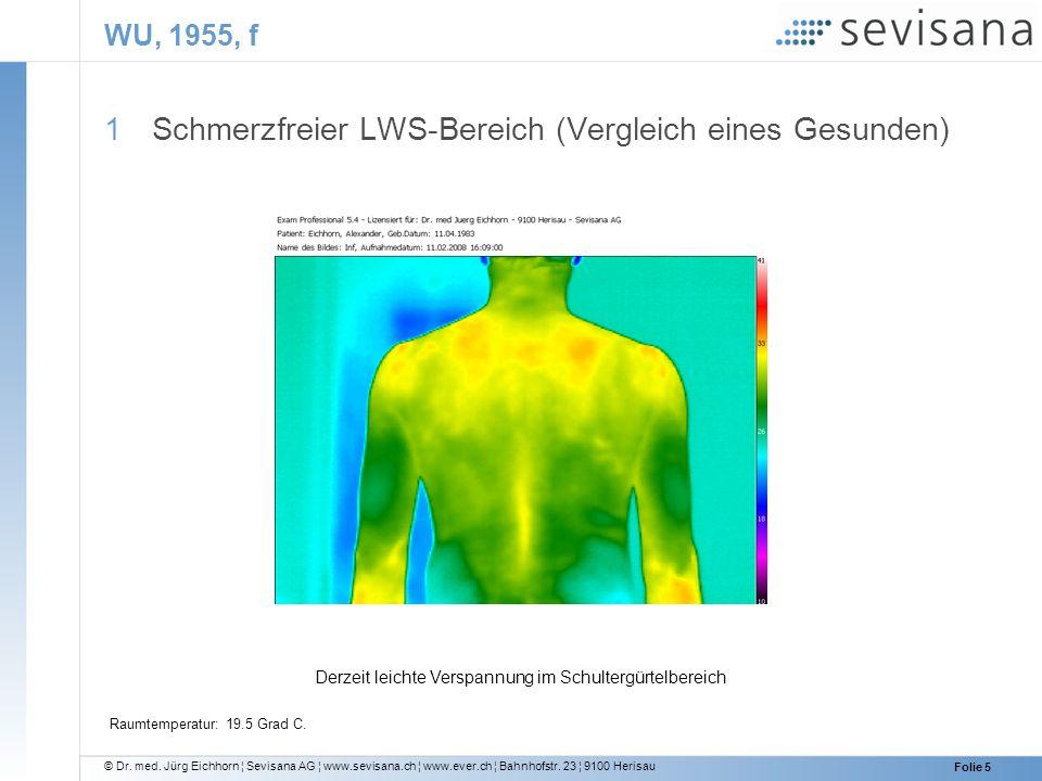 Schmerzfreier LWS-Bereich (Vergleich eines Gesunden)