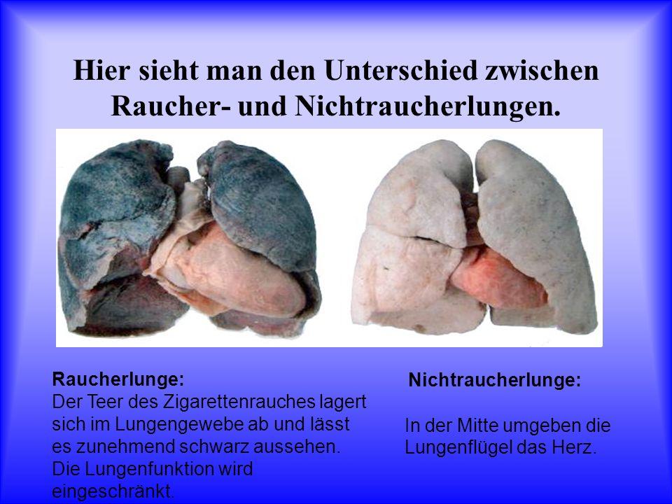Hier sieht man den Unterschied zwischen Raucher- und Nichtraucherlungen.
