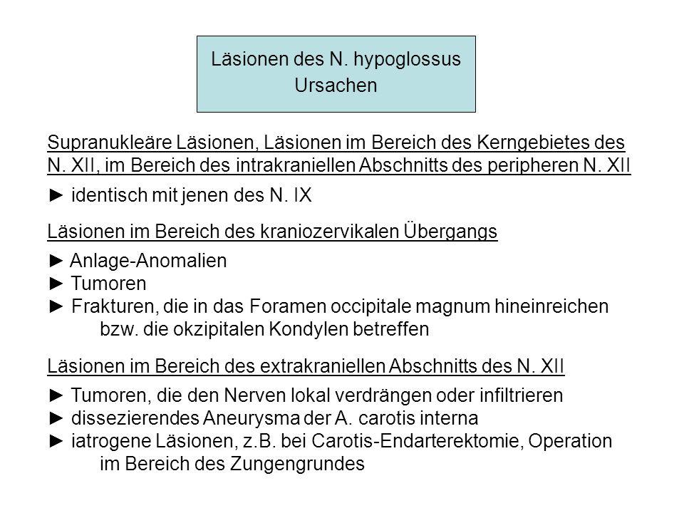 Läsionen des N. hypoglossus