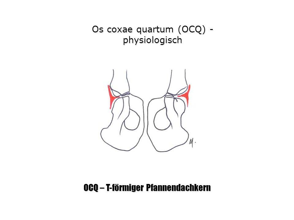 Os coxae quartum (OCQ) - physiologisch