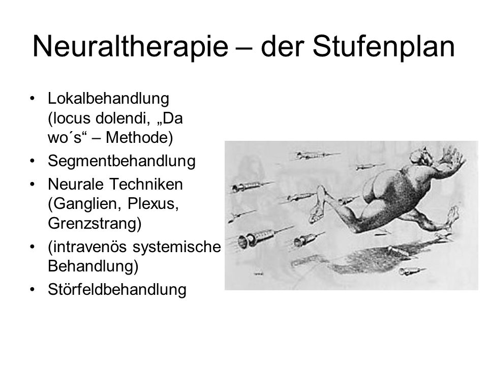 Neuraltherapie – der Stufenplan