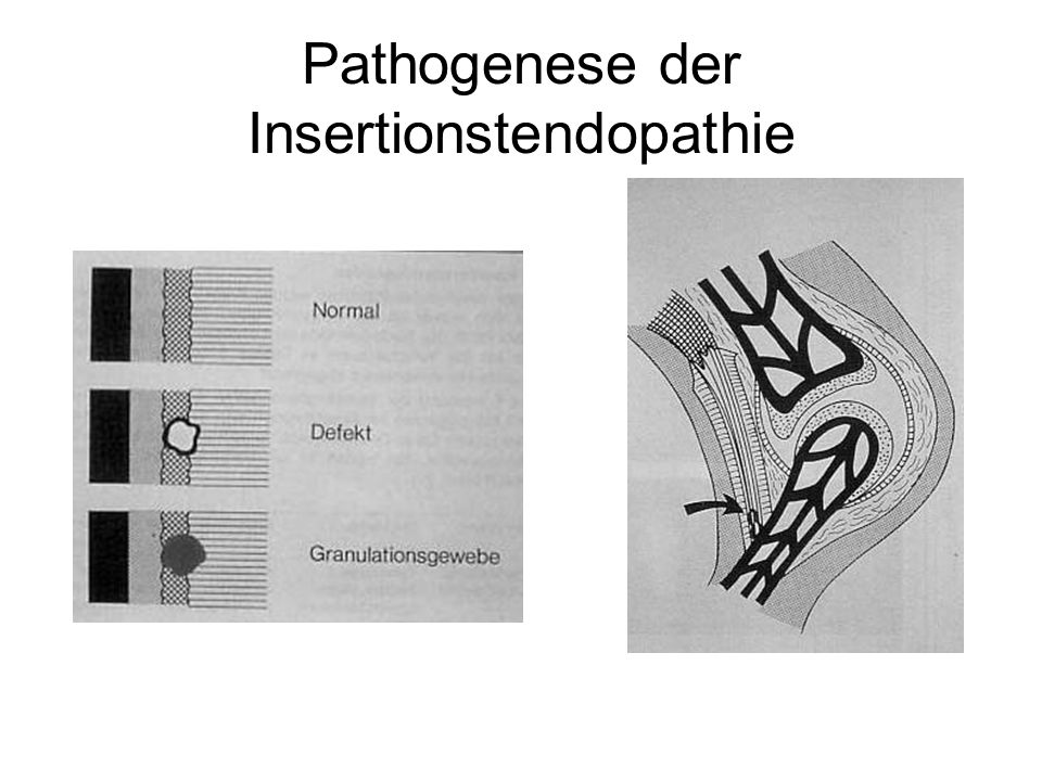 Pathogenese der Insertionstendopathie