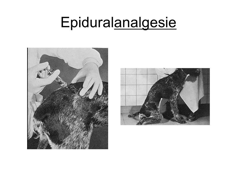 Epiduralanalgesie
