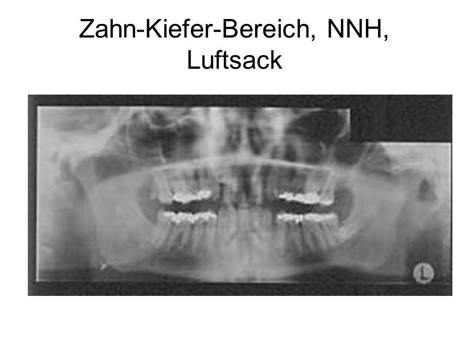 Zahn-Kiefer-Bereich, NNH, Luftsack