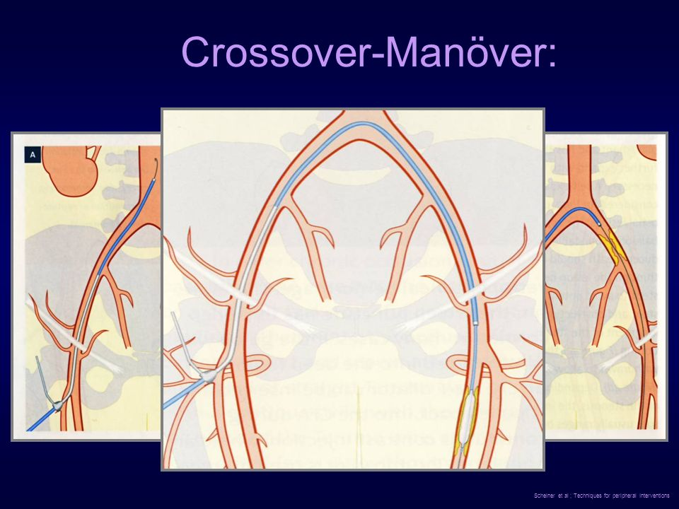 Crossover-Manöver: Scheiner et al ; Techniques for peripheral Interventions