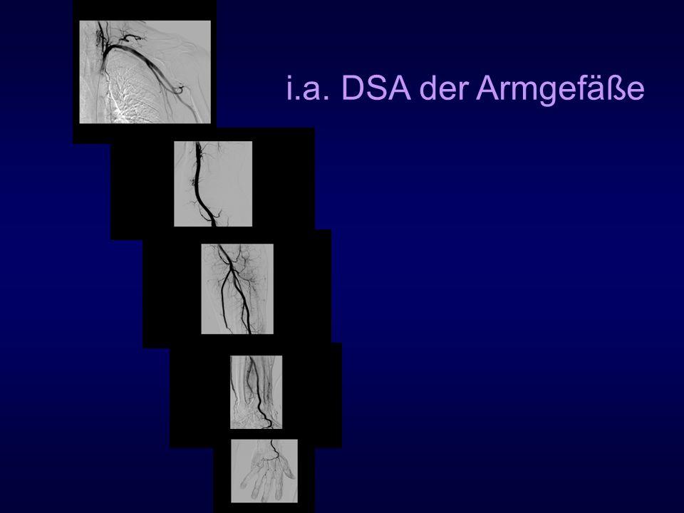 i.a. DSA der Armgefäße