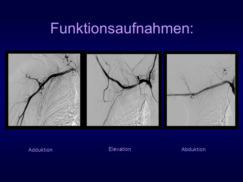 Funktionsaufnahmen: Adduktion Elevation Abduktion