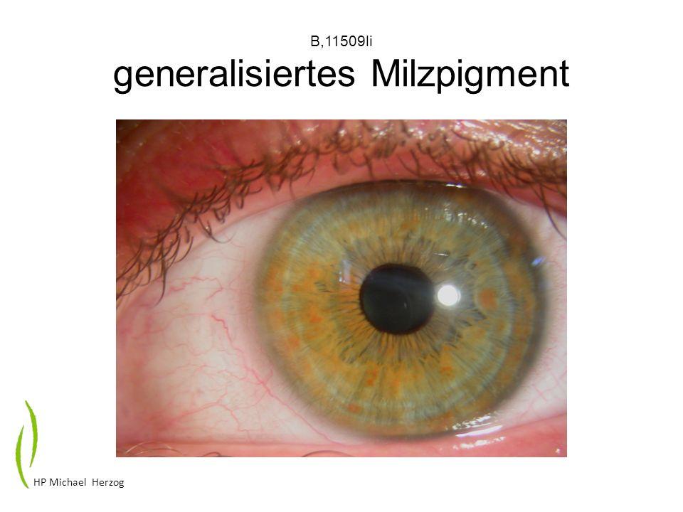 B,11509li generalisiertes Milzpigment