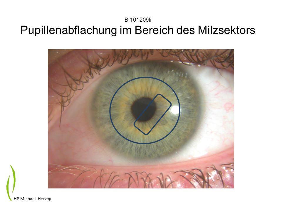 B,101209li Pupillenabflachung im Bereich des Milzsektors