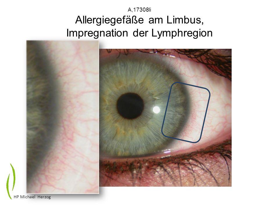 A,17308li Allergiegefäße am Limbus, Impregnation der Lymphregion