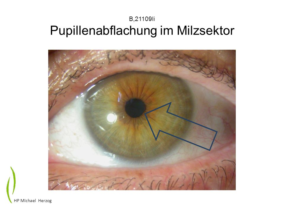 B,21109li Pupillenabflachung im Milzsektor