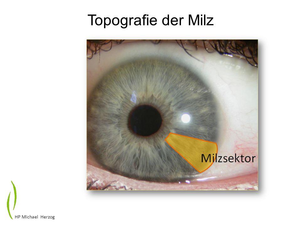Topografie der Milz HP Michael Herzog