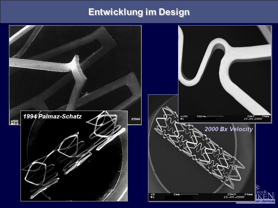 Entwicklung im Design 1994 Palmaz-Schatz 2000 Bx Velocity