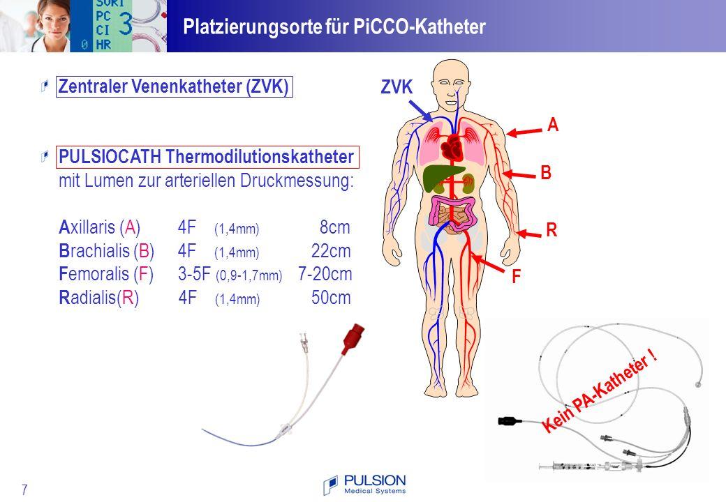 Platzierungsorte für PiCCO-Katheter