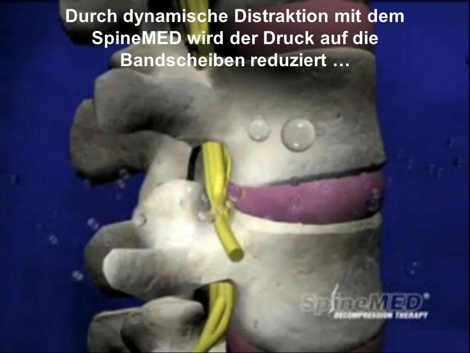 Durch dynamische Distraktion mit dem SpineMED wird der Druck auf die Bandscheiben reduziert …
