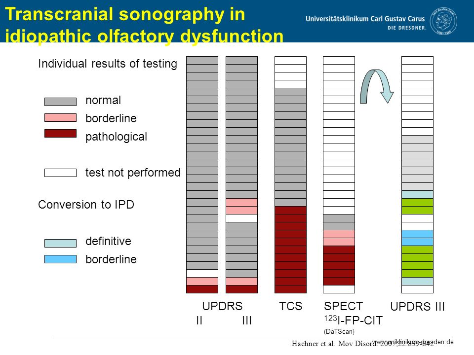 Transcranial sonography in idiopathic olfactory dysfunction