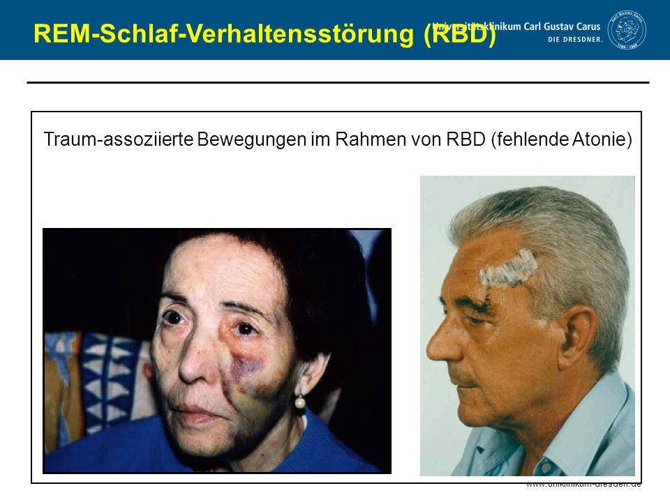 REM-Schlaf-Verhaltensstörung (RBD)