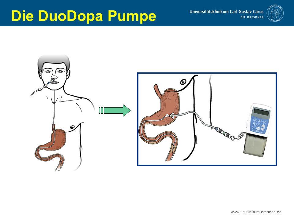 Die DuoDopa Pumpe