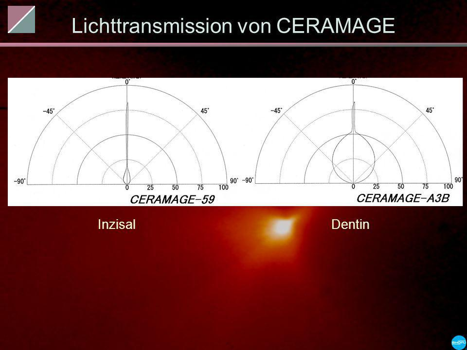 Lichttransmission von CERAMAGE