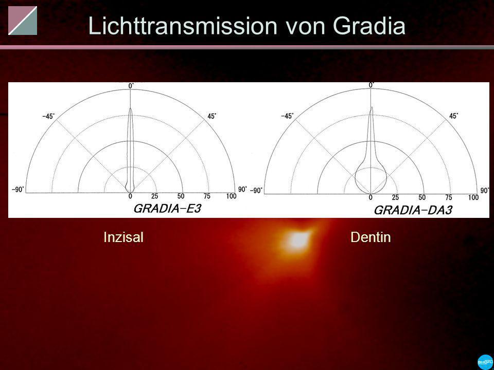 Lichttransmission von Gradia