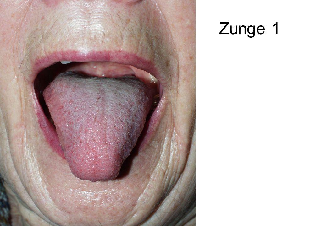 Zunge 1