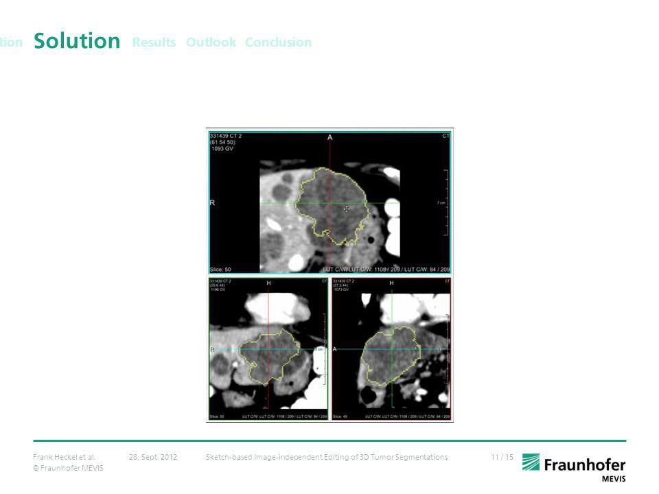 Results Solution. Outlook Conclusion. Data: 89 tumors in CT (lung nodules, liver metastases, lymph nodes)