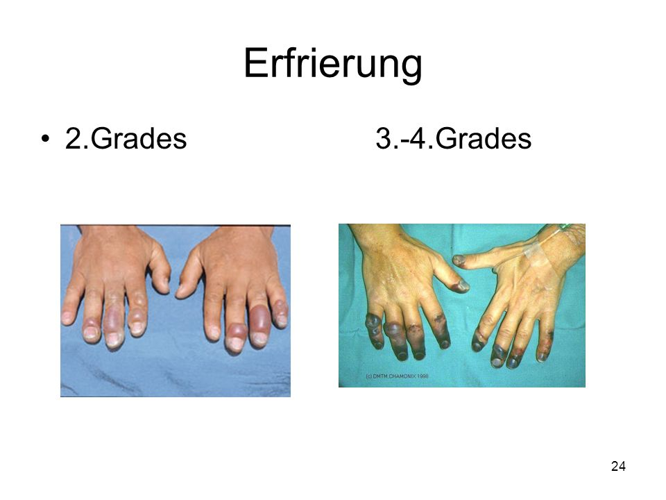 Erfrierung 2.Grades 3.-4.Grades