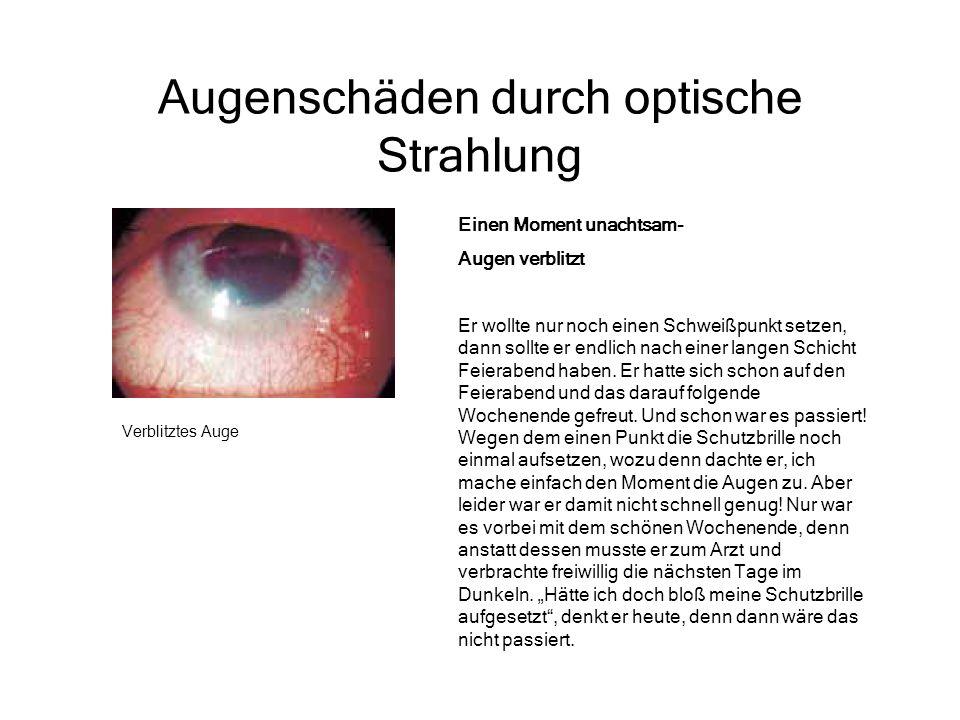 Augenschäden durch optische Strahlung