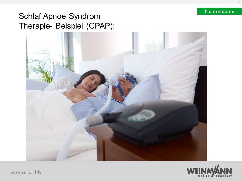 Schlaf Apnoe Syndrom Therapie- Beispiel (CPAP):