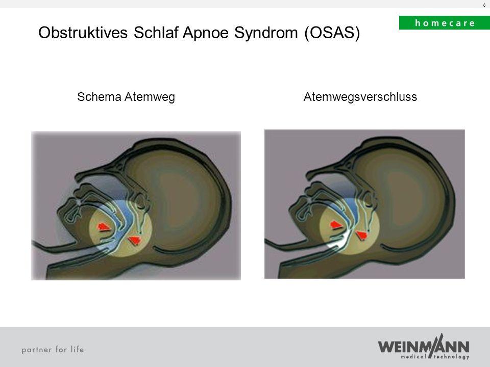 Obstruktives Schlaf Apnoe Syndrom (OSAS)