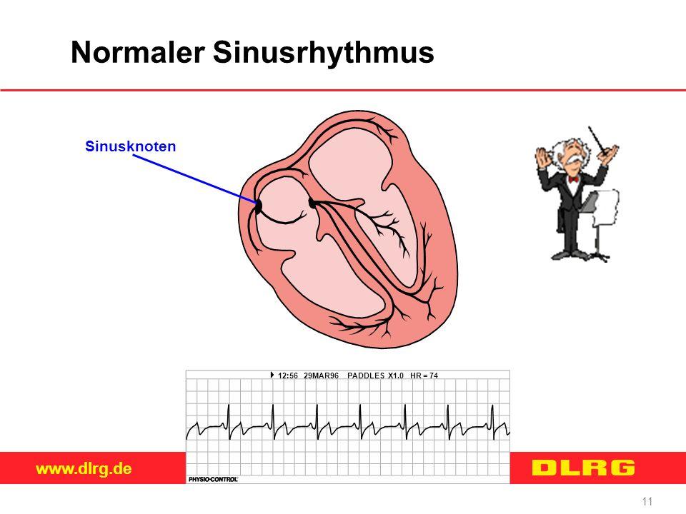 Normaler Sinusrhythmus