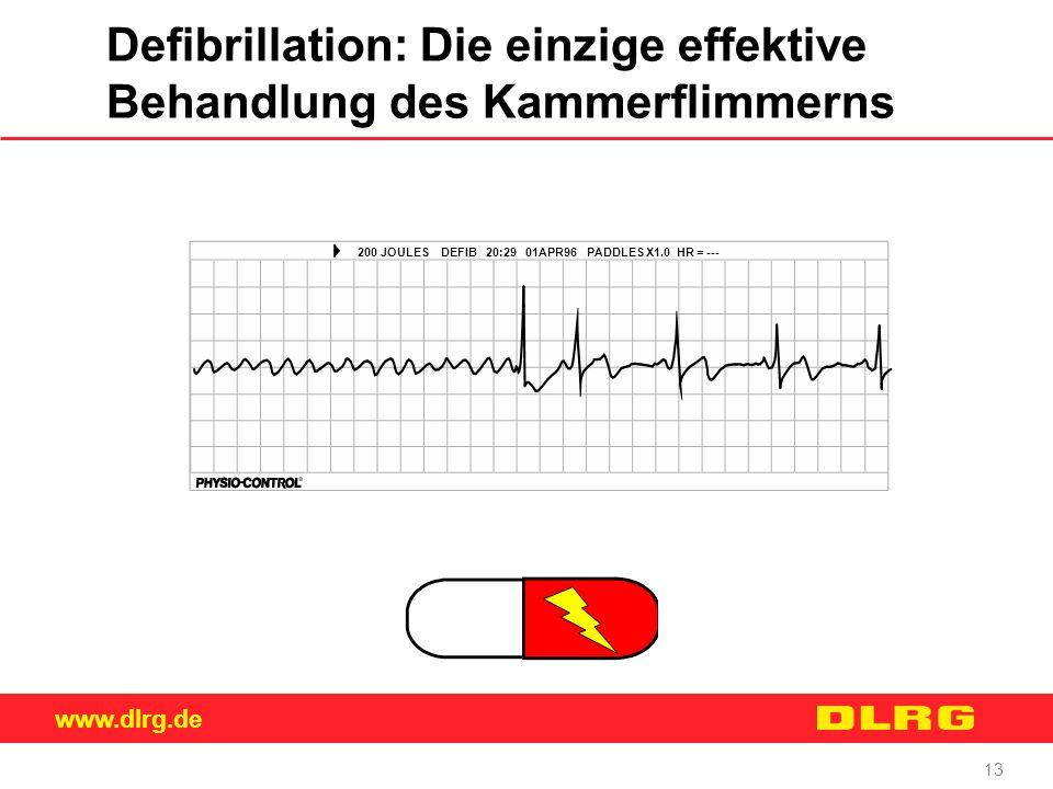 Defibrillation: Die einzige effektive Behandlung des Kammerflimmerns