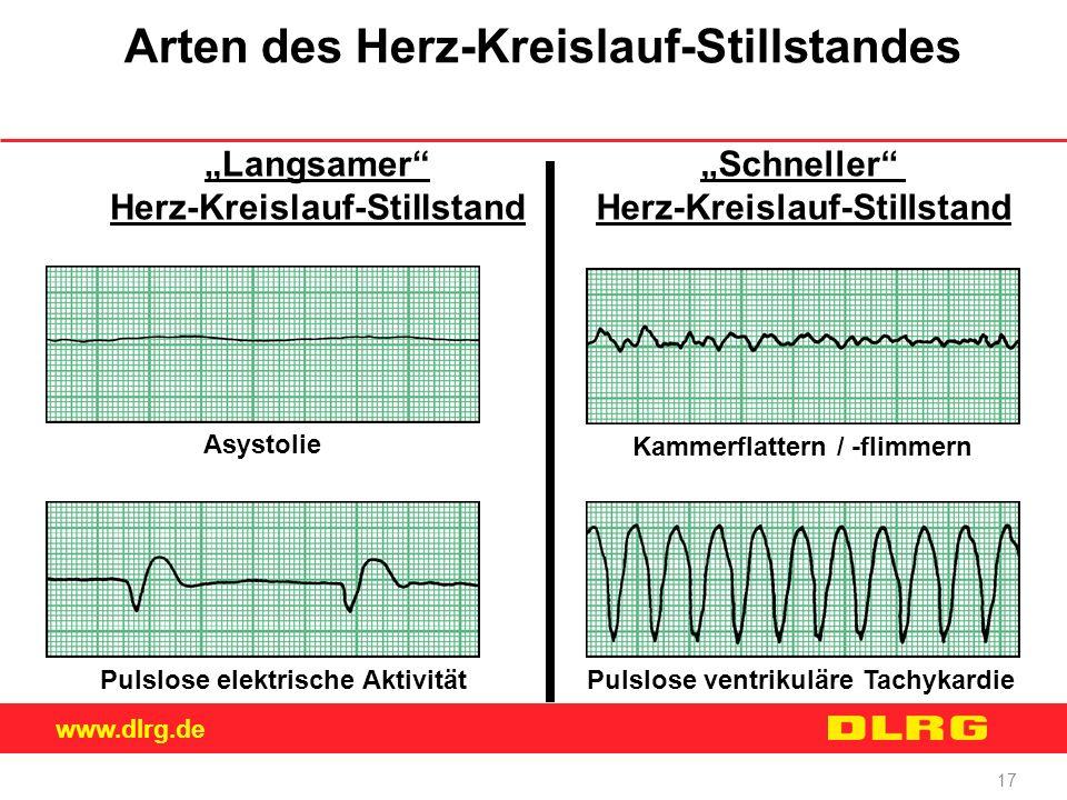 Arten des Herz-Kreislauf-Stillstandes