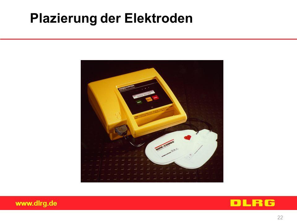 Plazierung der Elektroden
