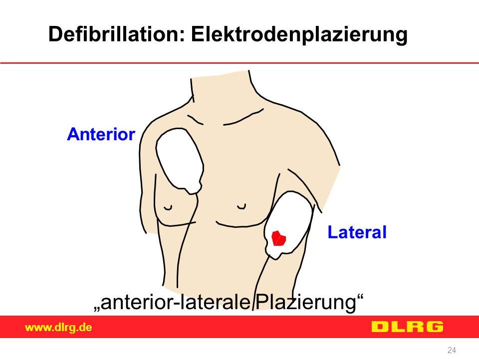 Defibrillation: Elektrodenplazierung
