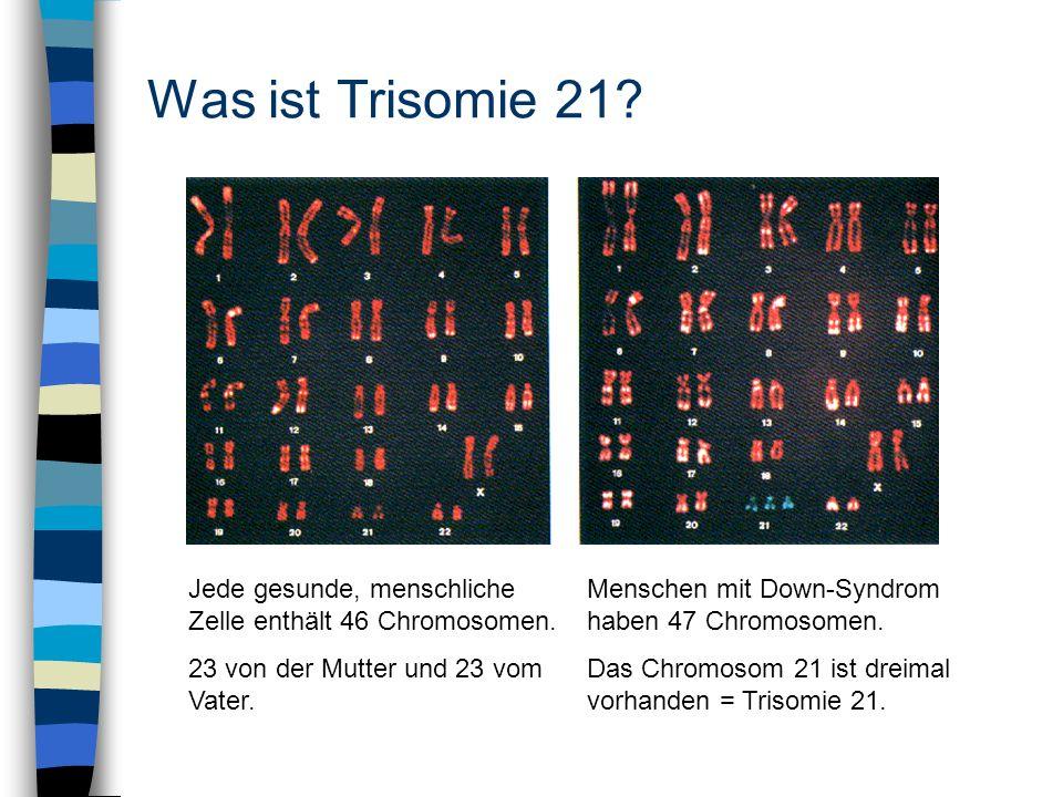 Was ist Trisomie 21 Jede gesunde, menschliche Zelle enthält 46 Chromosomen.