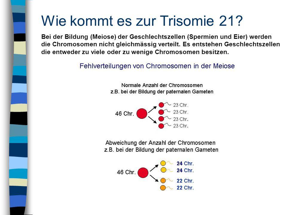 Wie kommt es zur Trisomie 21