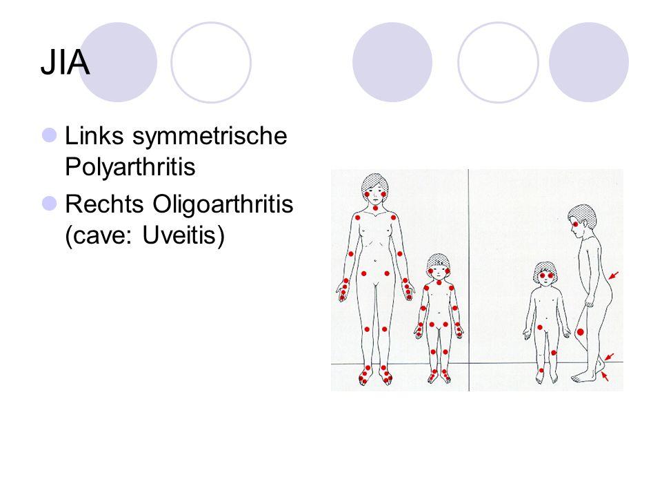 JIA Links symmetrische Polyarthritis