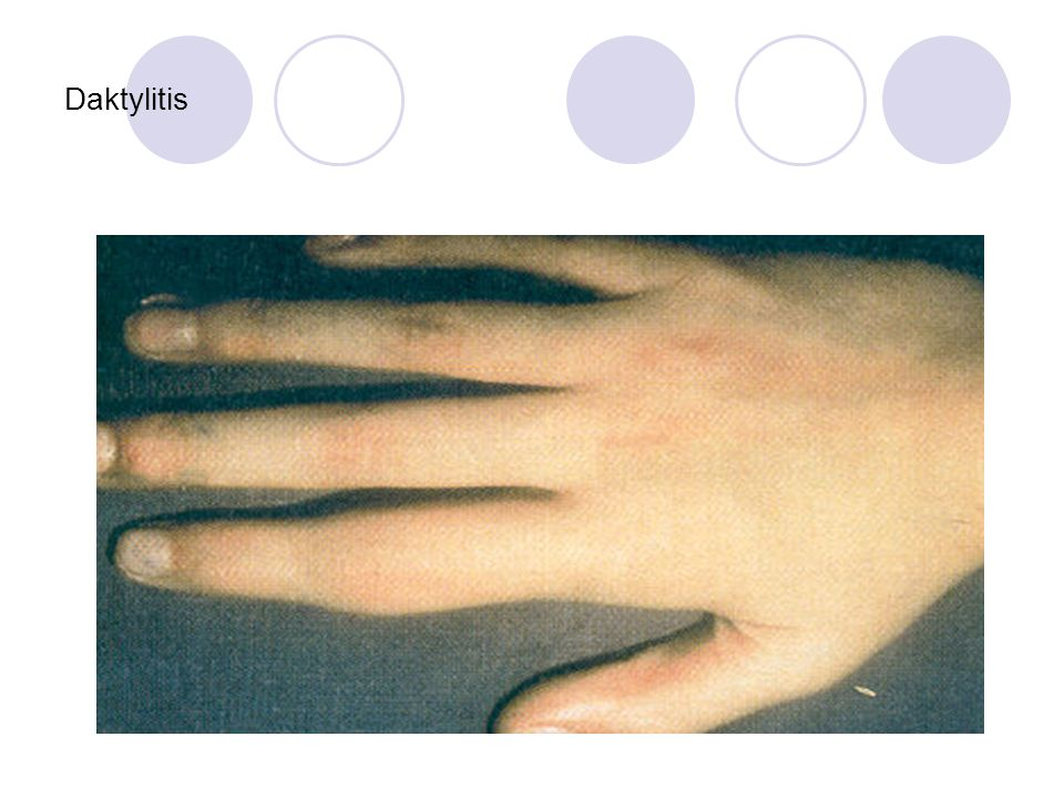 Daktylitis