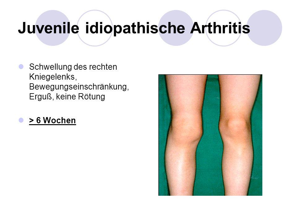 Juvenile idiopathische Arthritis