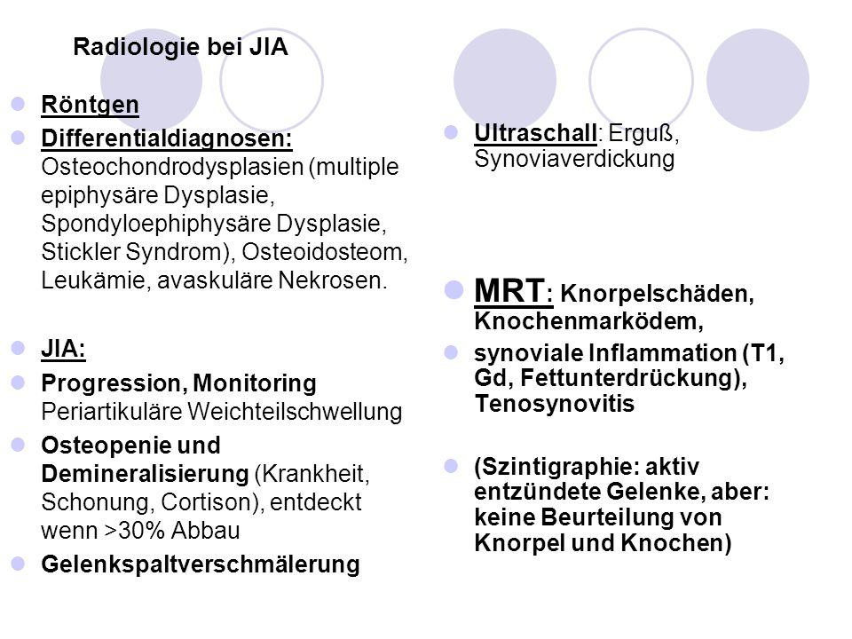 MRT: Knorpelschäden, Knochenmarködem,